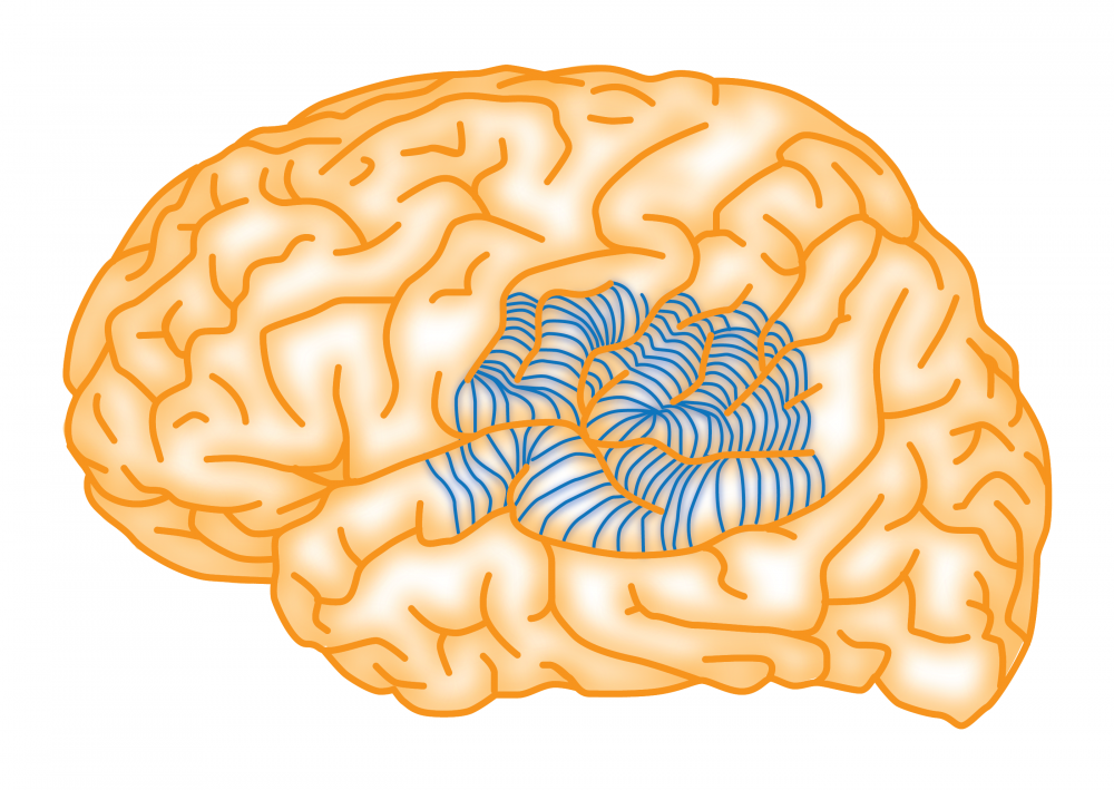 Brain Recovery Longer Than Clinical >> Multiple Subpial Transection The Brain Recovery Project